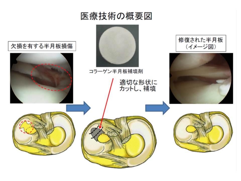コラーゲン半月板補填材を用いた治療の概念図、補填材によって半月様組織の再生が促され、欠損部が修復されることが期待される