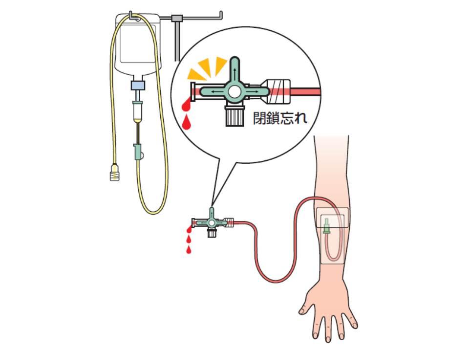 三方活栓を閉鎖せず、注射器を外したため、患者の血液が逆流してしまった事例