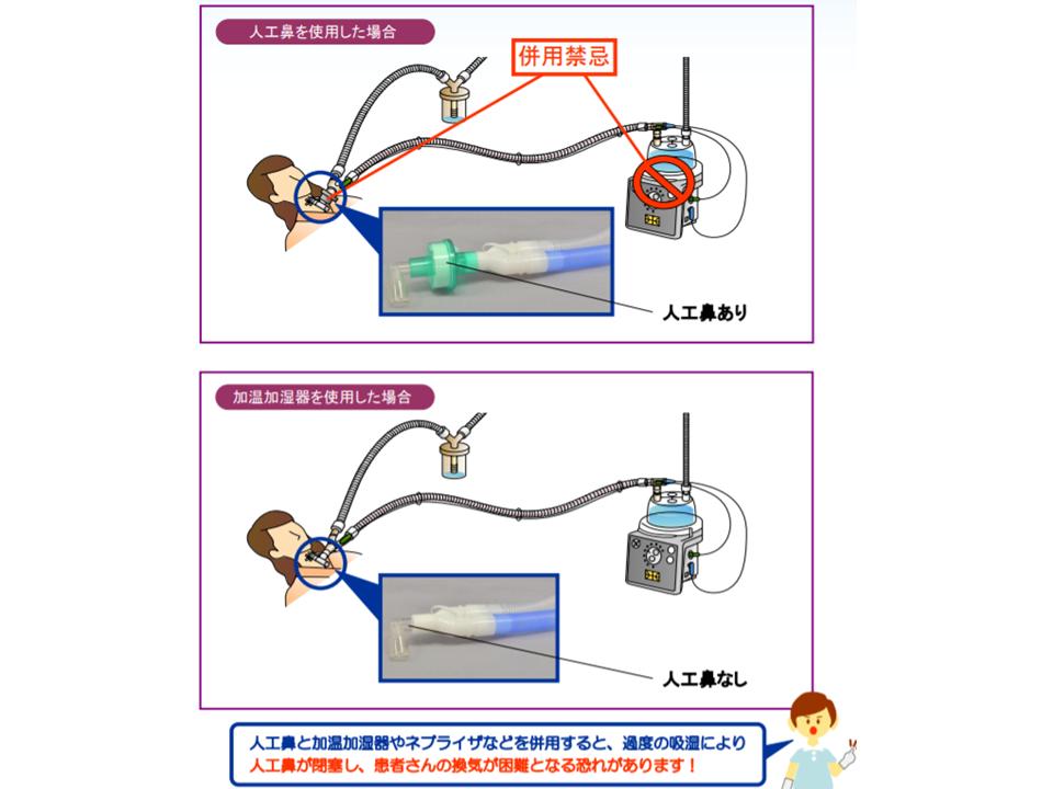 仕組み 人工 呼吸 器