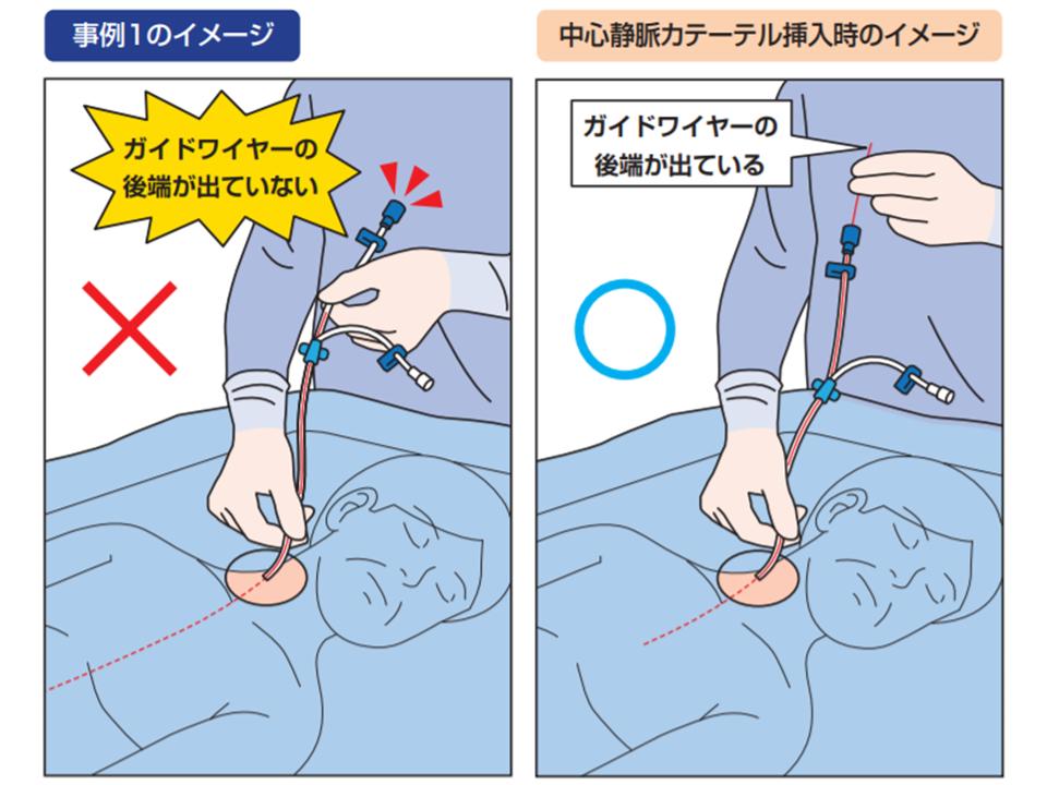 静脈 カテーテル 中心 PICCとは/輸液治療に用いる医療機器について