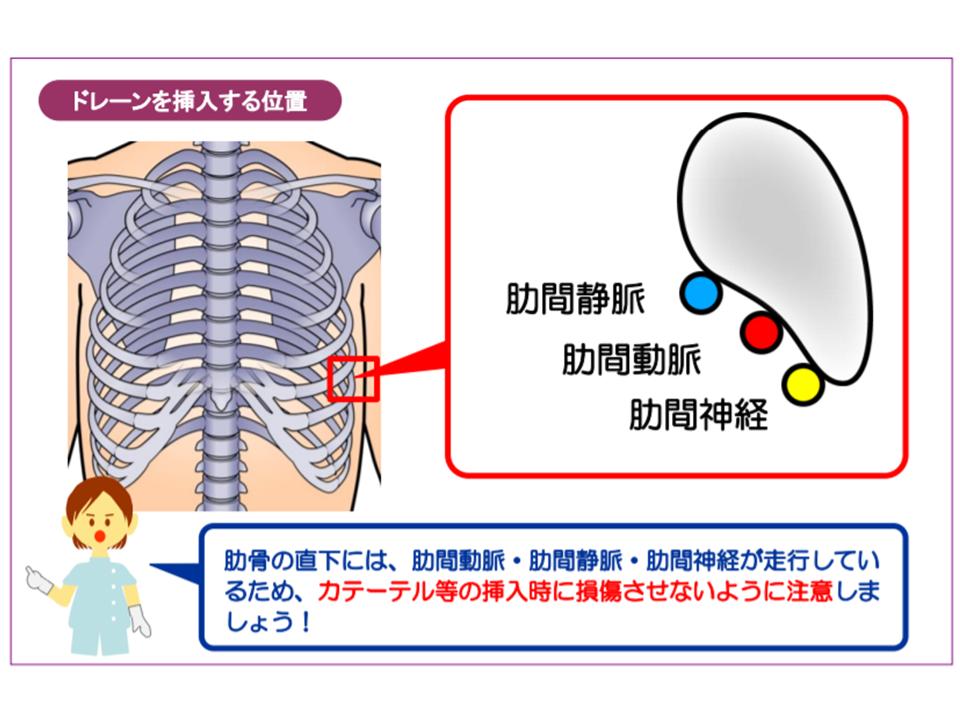 ドレーン 胸腔